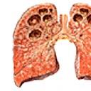 Imagem demonstrativa da tuberculose no ápice